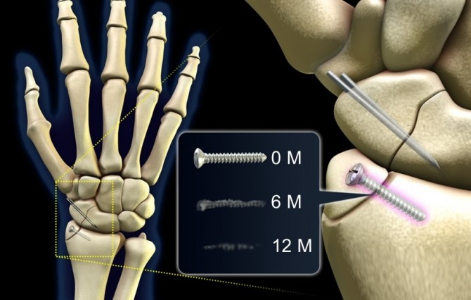 연구팀이 개발한 생분해형 금속임플란트는 12개월이 지나면 체내에서 분해돼 사라진다. 부작용이 없으며, 회복에 도움을 준다는 사실이 확인됐다. - 한국과학기술연구원(KIST) 제공